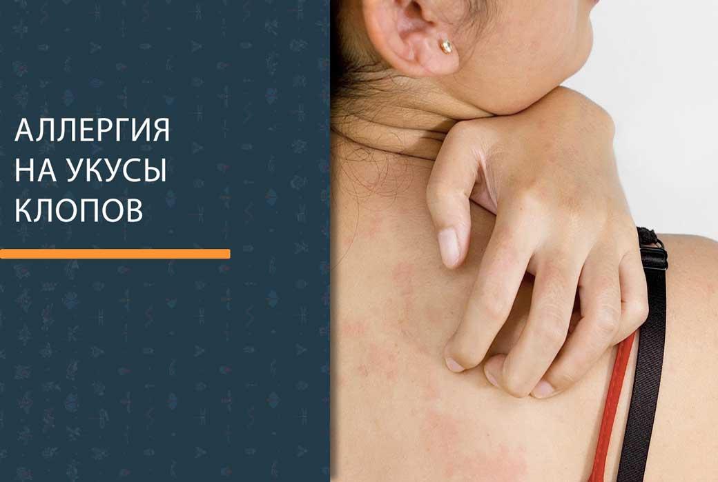 Аллергия на укус клопа у человека фото